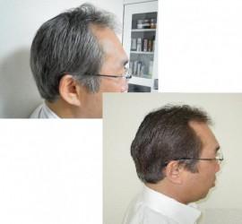 ピュア リュウマ(Pure Ryuma)150mlの写真